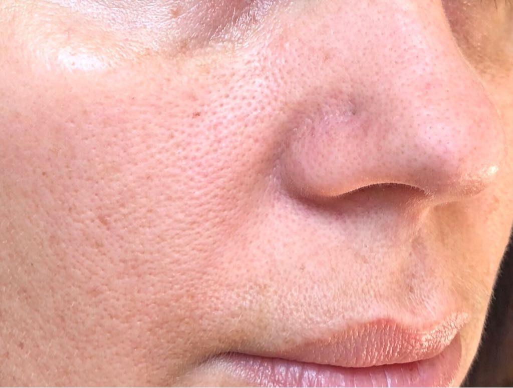 Bioderma pore refiner után