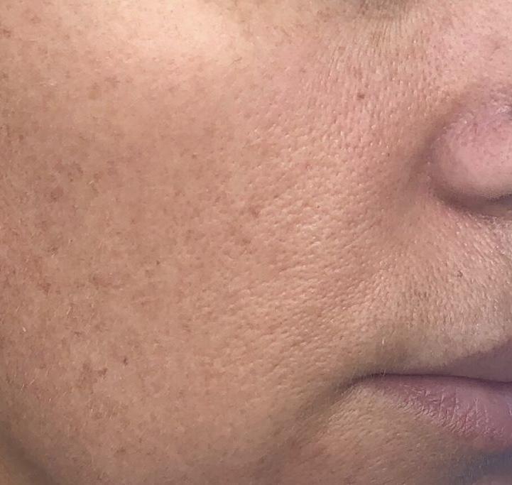 Nyx pore filler előtte utána