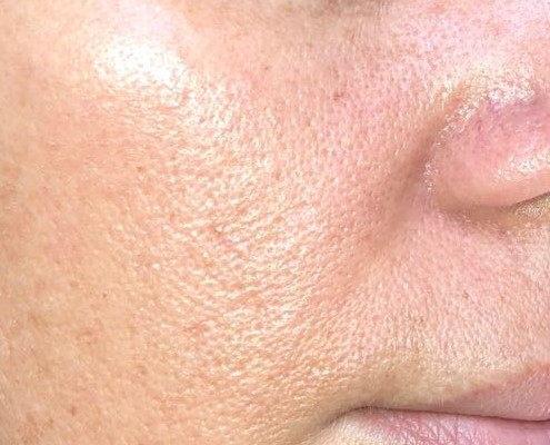 Bioderma pore refiner előtt